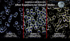 Strålning får blodcellerna att klumpa ihop sig